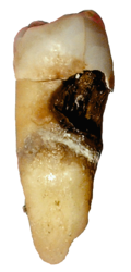 Ein kranker Zahn mit Zahnkaries