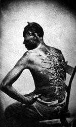 Een zwarte slaaf die erg mishandeld werd. De persoon die hem sloeg werkte voor zijn eigenaar.