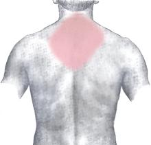 De gebieden in lichtrood worden soms aangegeven als de plaats waar pijn wordt gevoeld. Deze afbeelding toont de rug.