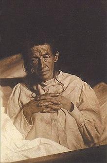 1901年にアロイス・アルツハイマーがアルツハイマー病と表現した患者、オーギュスト。アルツハイマー病は一般的に認知症と関連しています