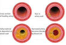 Coronaire hartziekte : Plaque hoopt zich op in bloedvaten in het hart waardoor deze vernauwen, Hartaanval: hierbij komt een bloedstolsel plotseling vast te zitten in een van de nauwe bloedvaten.