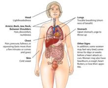 Hartaanval ( myocard infarct) Waarschuwingssymptomen bij vrouwen.