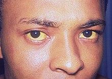 Jaundice Malaria kan geelzucht veroorzaken, waardoor de huid en de witte gebieden van de ogen (sclerae) oranjegeel worden. Dit wordt veroorzaakt door hyperbilirubinemie - te veel bilirubine in het bloed. Bilirubine is een pigment dat ontstaat wanneer het lichaam oude rode bloedcellen afbreekt.
