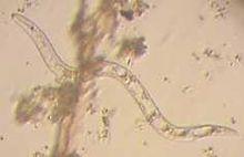 Een spoelworm