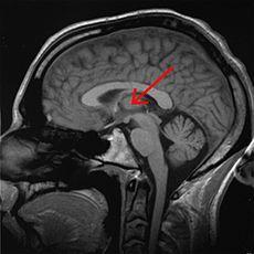MRI doorsnede, met thalamus gemarkeerd