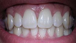 Gesunde menschliche Zähne