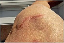 blizny po laserowym usuwaniu tatuażu
