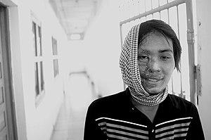 Slachtoffer van zuur gooien, Cambodja