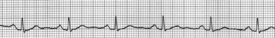 """EKG """"Rhythm Strip"""" - Jeder QRS ist ein Herzschlag"""