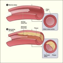 Schematische voorstelling van de effecten van atherosclerose op een slagader.