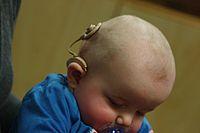 Uma criança com um implante coclear.