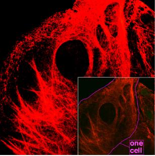 Mikroskopie von Keratinfilamenten im Inneren von Zellen.